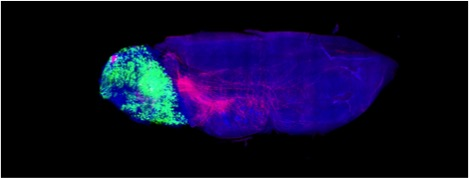 Fluorescent imaging maps out the olfactory parts of a mouse brain. Photo Credit: Robert Datta
